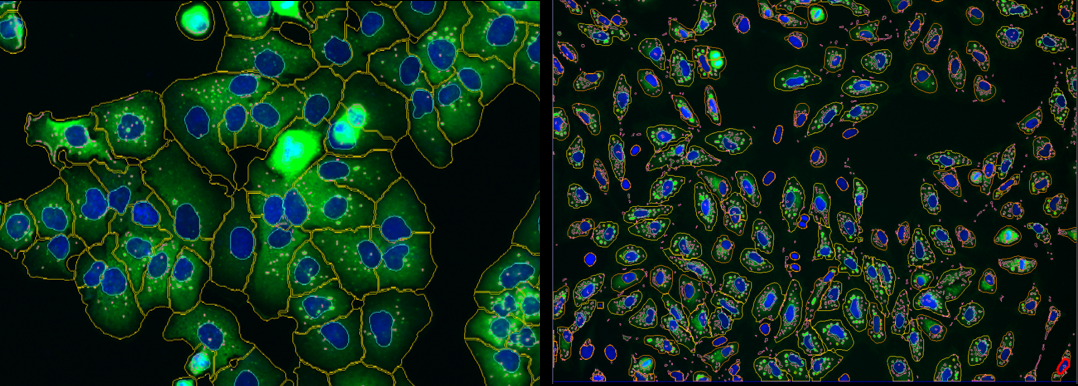 Intracellular granules quantification using Athena analysis software